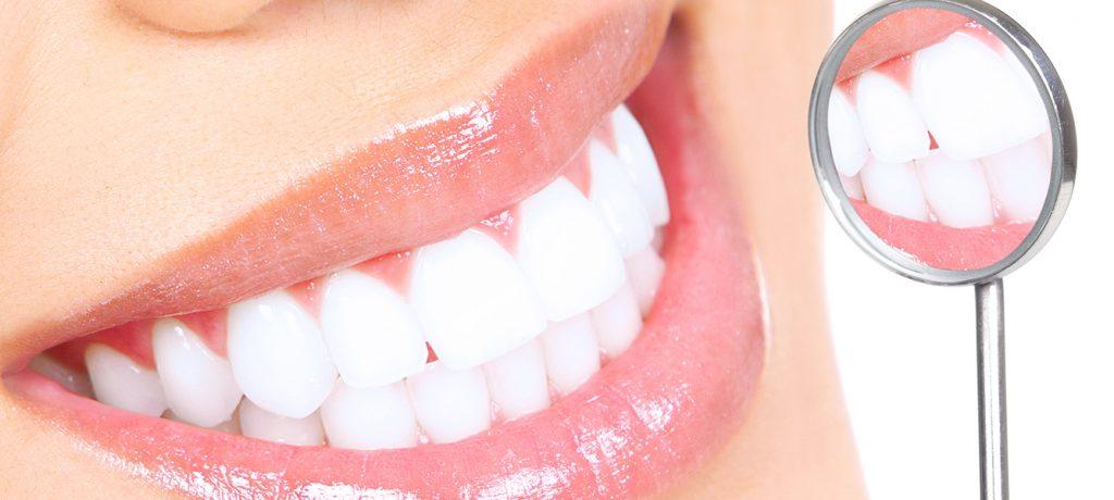 How Do I Keep My Teeth White?