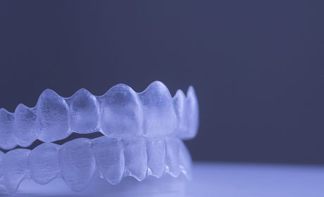 How Long Does Invisalign Take To Improve Your Teen's Smile?
