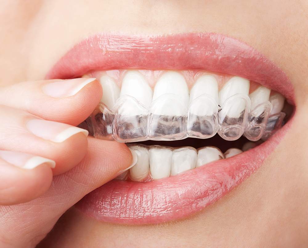 Get straight teeth at home - The Invisalign Difference