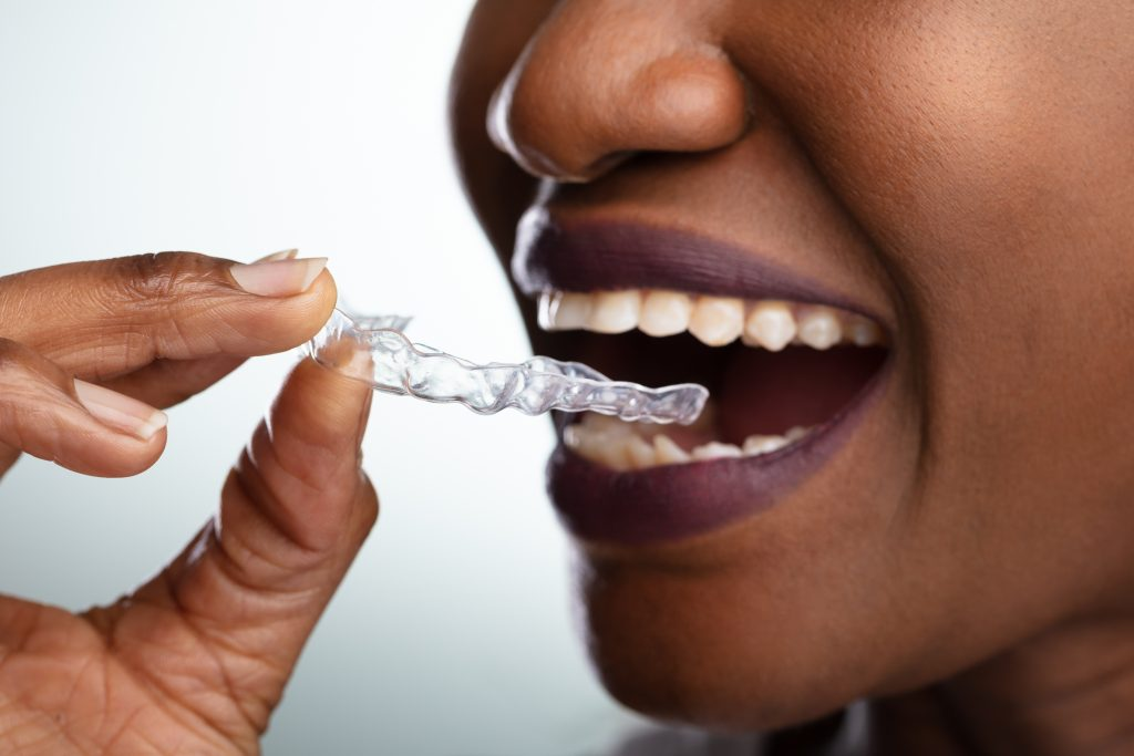 An African American woman prepares to put her invisible braces into her mouth.