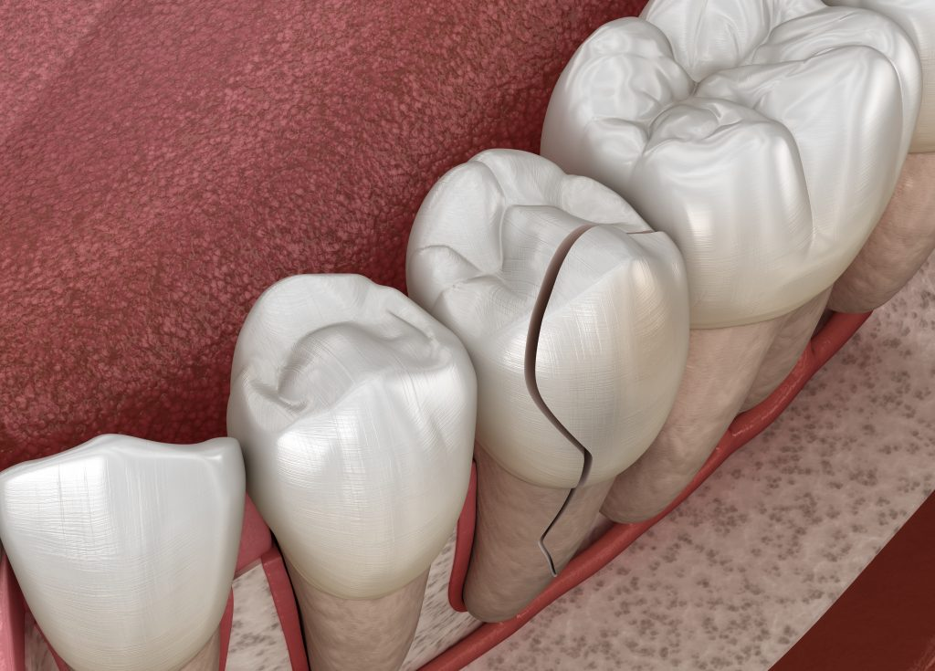 3D digital rendering of a cracked tooth, surrounded by other healthy teeth.
