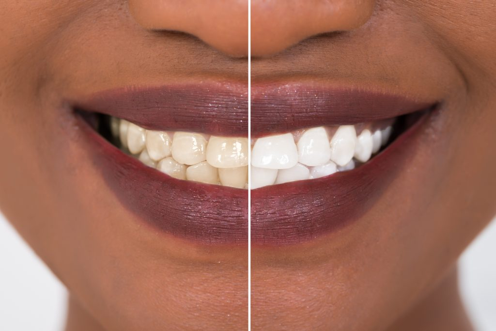 Close-up detail of a smiling Black woman showing the before and after of teeth whitening treatment