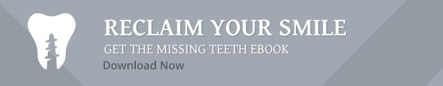 Missing Teeth eBook