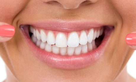 What Should I Do If I Have Tea-Stained Teeth?