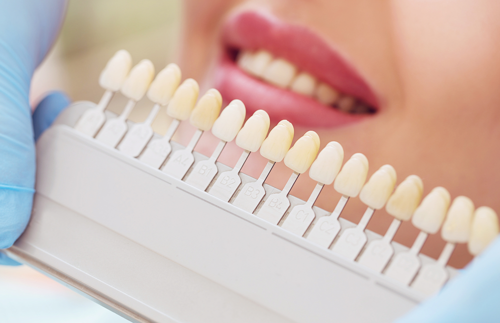 Sensitive Teeth Whitening Pdfp Cosmetic Dentistry Options