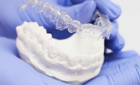 How Long is Invisible Braces Treatment? And Other Invisible Braces FAQs