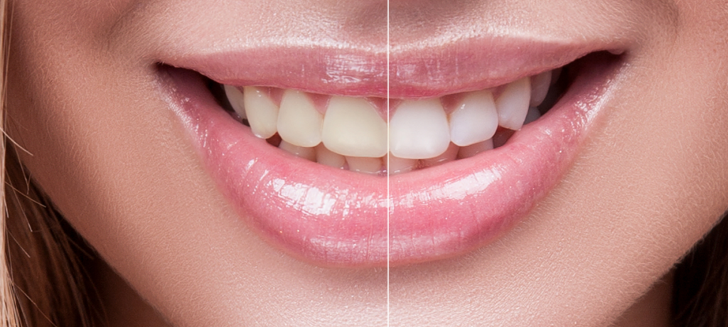 Safety Tips For When You Brighten Up Your Smile