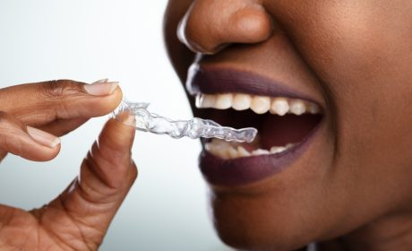 How Long Does it Take to Straighten Your Teeth with Clear Braces?