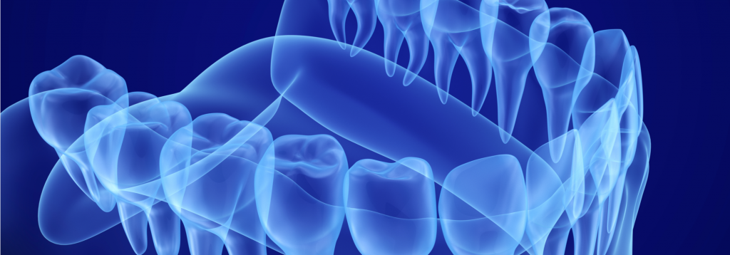 How Our New iTero Scanner Will Revolutionize Your Dental Experience