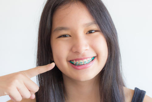 A young Asian girl with long brown hair points to her braces with neon green elastic bands and smiles.