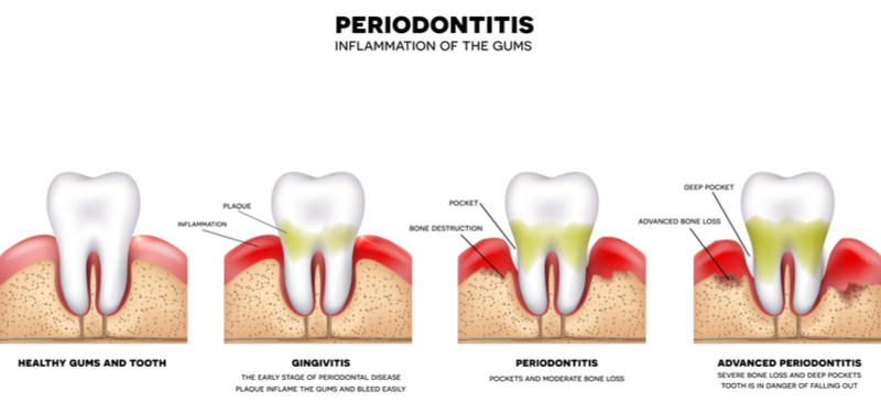 what is a periodontist dentist
