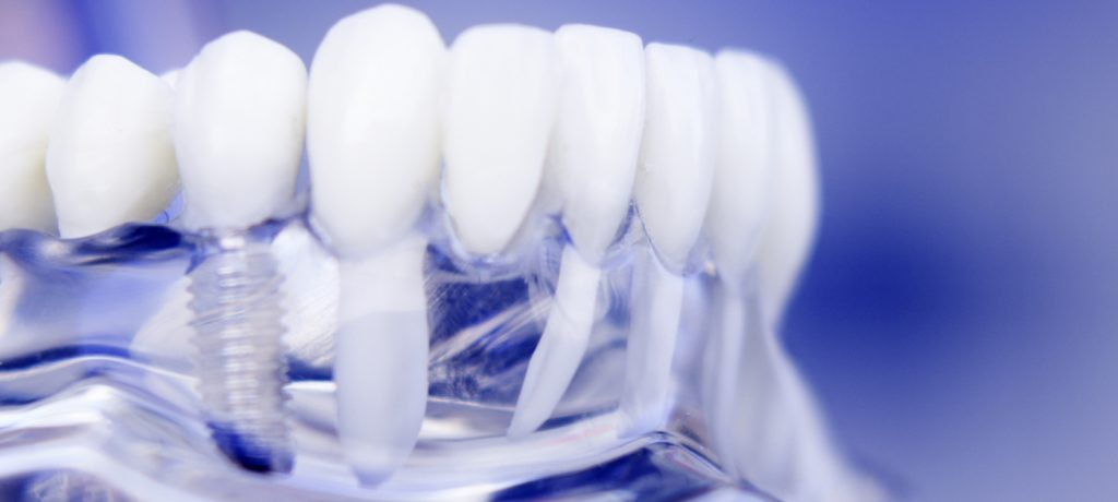 Your Search for the Best Tooth Implant Specialists Ends Here