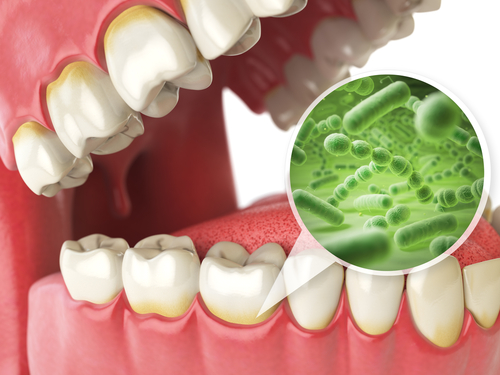 Tooth Infection Symptoms | Penn Dental Family Practice