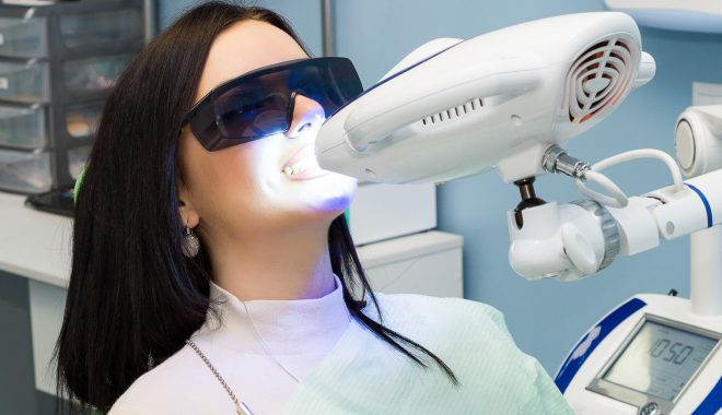Are All Teeth Whitening Systems The Same?