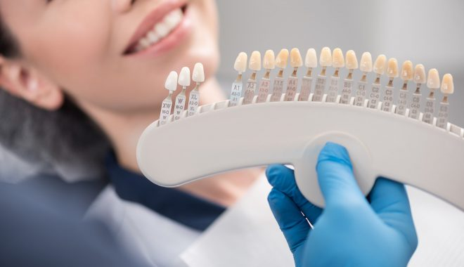 What Are My Cosmetic Dentistry Options?