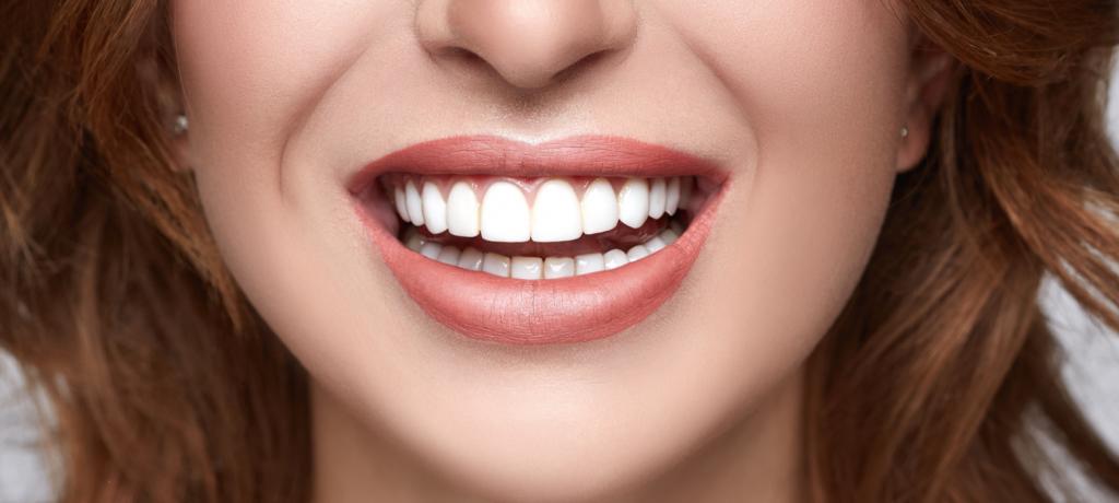 The Benefits vs. the Cost of Dental Veneers