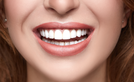 The Benefits vs. the Cost of Dental Veneers