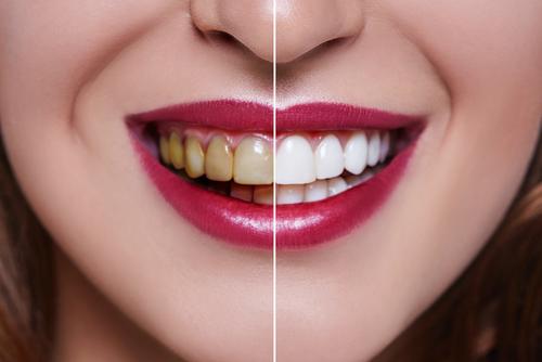 The-Cost-Of-Dental-Veneers