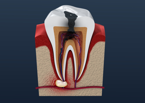 Tooth Infection Symptoms