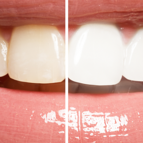 Real Options for Teeth Whitening