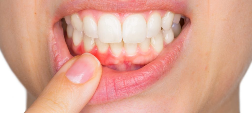 What Can I Do About My Receding Gums?