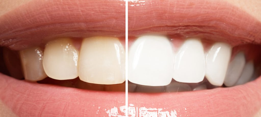 What Can a Teeth Whitening Dentist Do For You?