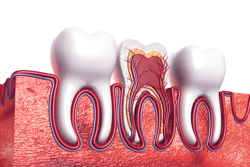 does a root canal hurt