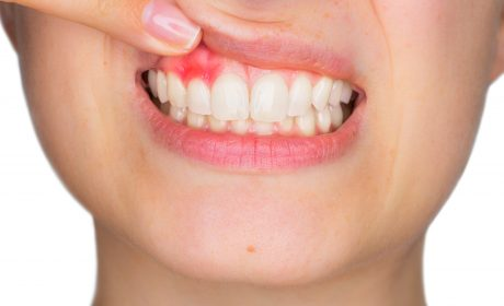 Everything You Need to Know About Receding Gums (But Were Afraid to Ask)
