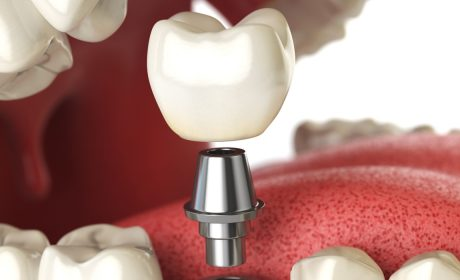 How to Find the Right Oral Surgeon