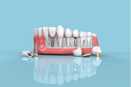 A 3D model depicts several types of dental implants on the bottom row of teeth, with a blue background.