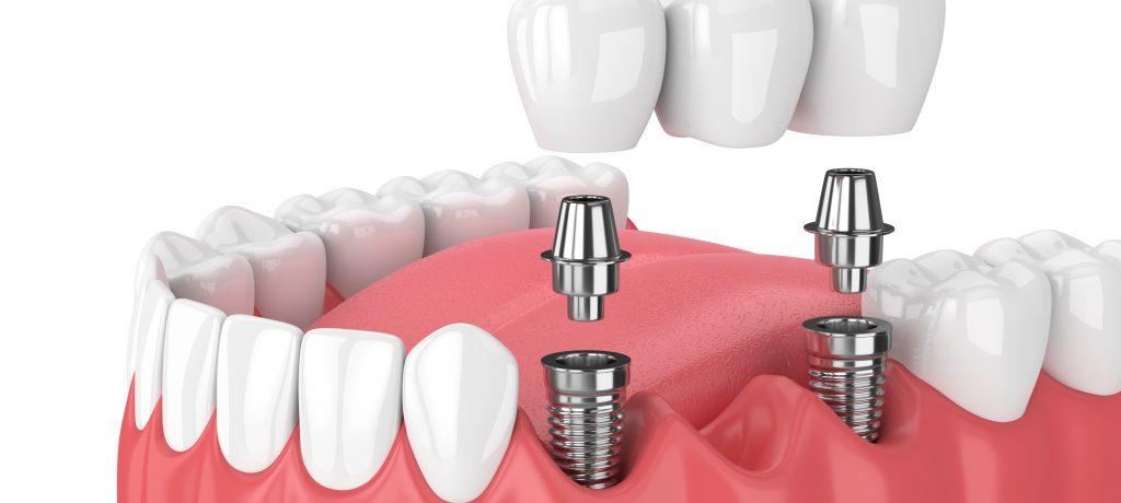Discover our Dental Implant Center for Expert, Complex Care