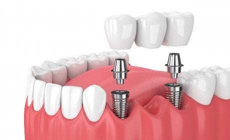 Discover our Dental Implant Center for Expert, Complex Care
